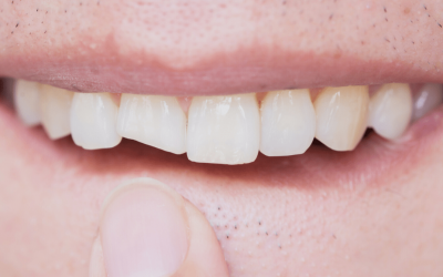 5 Tips for Trauma to teeth or TMJ Medical Claims