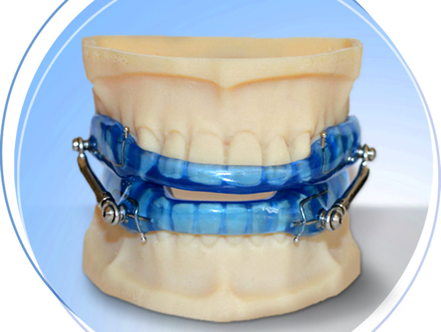 Dentists – Take Advantage of a Booming Sleep Apnea Appliance Market